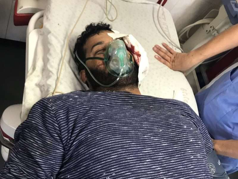 اصابة المصور الصحفي عطية درويش اليوم في غزة