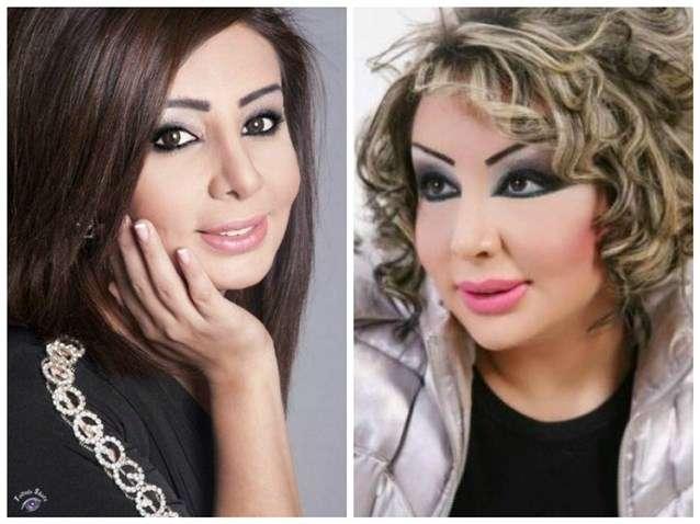 صورة حقيقة تشوه وجه شيماء علي بعد عملية التجميل