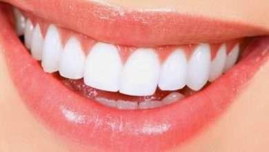 Photo of 4 وصفات طبيعية لتبييض الأسنان والقضاء على التسوس..