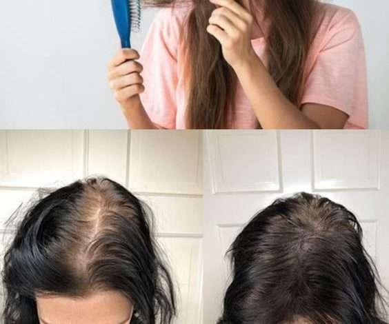 علاج تساقط الشعر 2021 افضل علاج تساقط الشعر للرجال النساء وصفات 1
